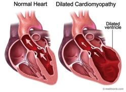 feline-dilatedcardiomyopathy
